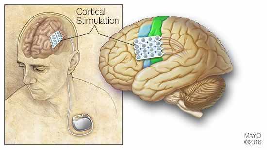 estimulacao cortical